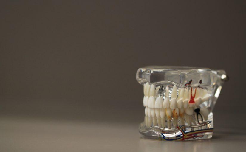 Zły sposób odżywiania się to większe braki w zębach a także ich zgubę